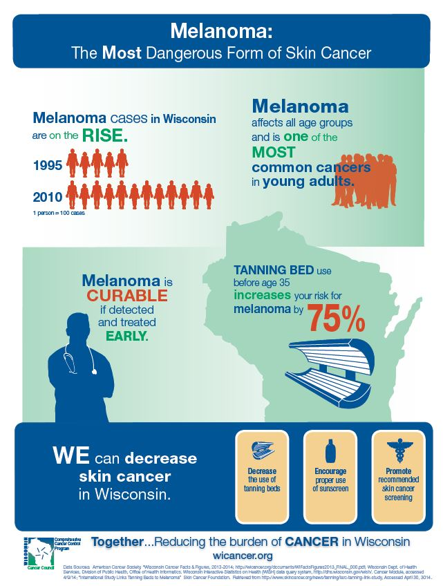 Melanoma: The Most Dangerous Form of Skin Cancer